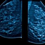 mammogram_scan