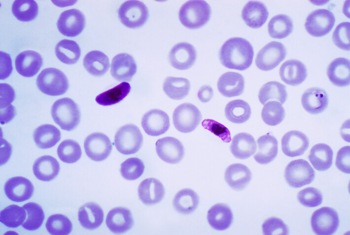 Cells infected with the malaria parasite appear darker and misshapen in a field of healthy cells under a microscope.